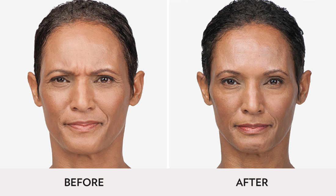 Botox Dysport Before After | Spa Radiance Medical | San Francisco Med Spa