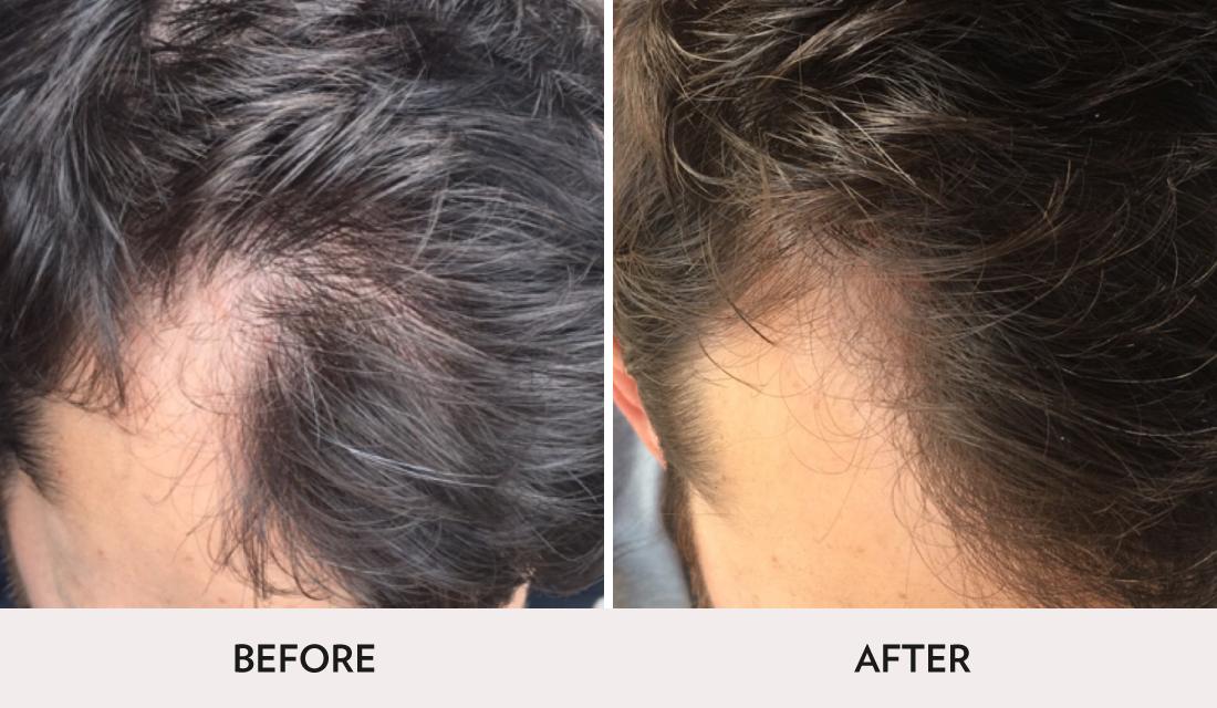 Hair Restoration Before After | Spa Radiance Medical | San Francisco Med Spa