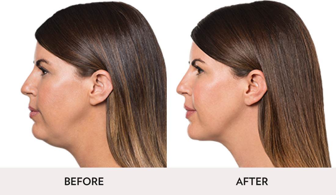 Kybella Before After | Spa Radiance Medical | San Francisco Med Spa