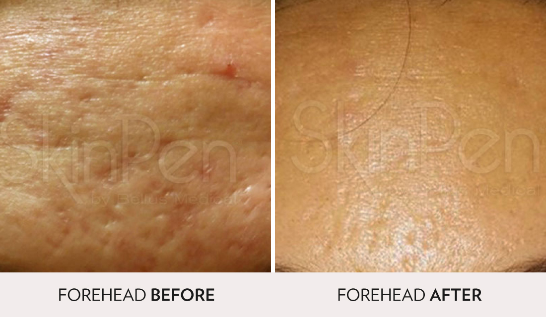 Microneedling & PRP Before After | Spa Radiance Medical | San Francisco Med Spa