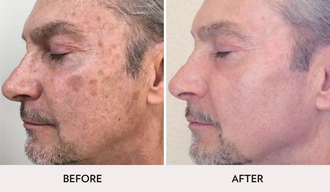 ProFractional Before After | Spa Radiance Medical | San Francisco Med Spa