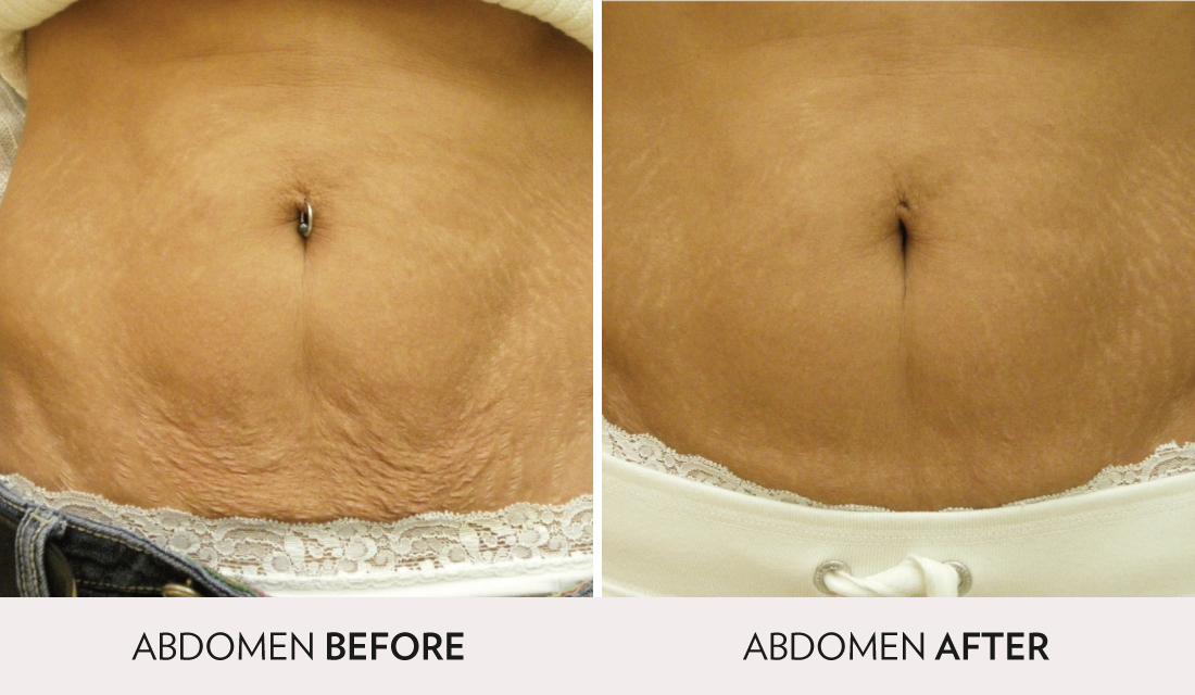 Skintyte Before After | Spa Radiance Medical | San Francisco Med Spa