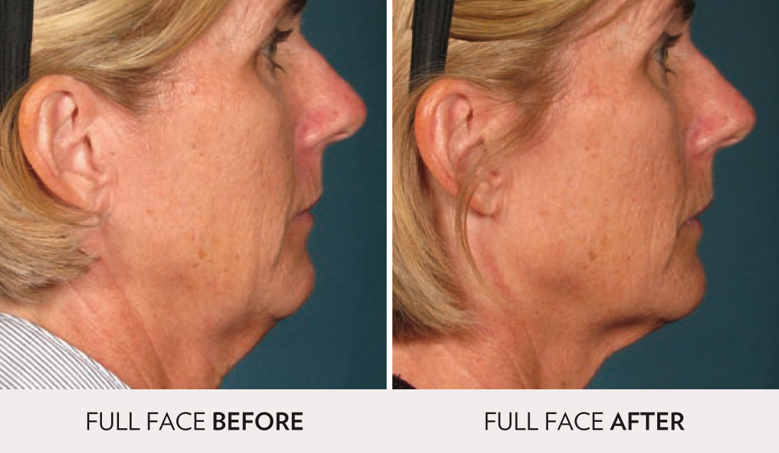Ultherapy Before After | Spa Radiance Medical | San Francisco Med Spa