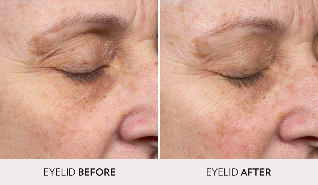 Clear and Brilliant Before After | Spa Radiance Medical | San Francisco Med Spa