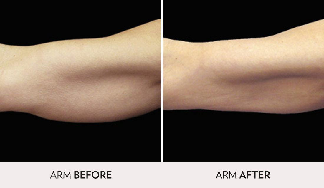 CoolSculpting Before After | Spa Radiance Medical | San Francisco Med Spa