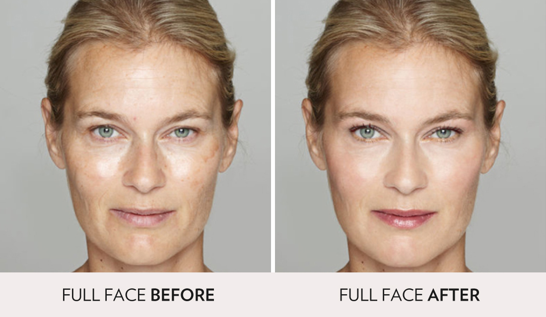 IPL Photofacial Before After | Spa Radiance Medical | San Francisco Med Spa