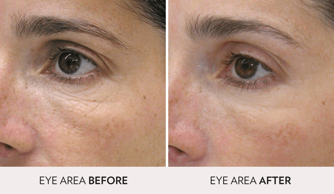 Mesotherapy Before After | Spa Radiance Medical | San Francisco Med Spa
