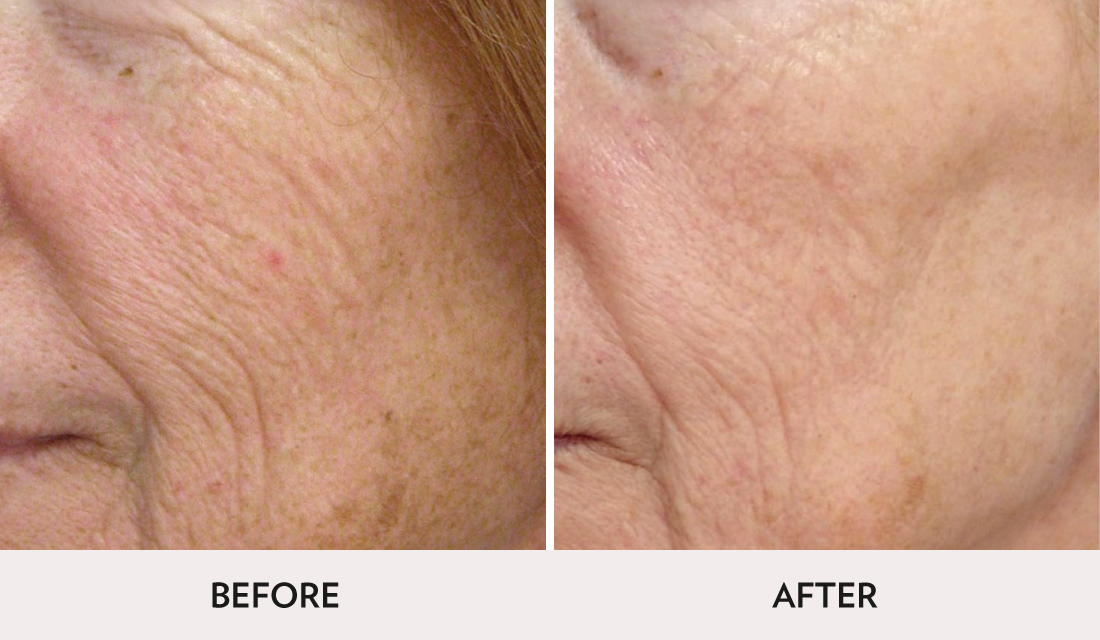 Micro Laser Peel Before After | Spa Radiance Medical | San Francisco Med Spa