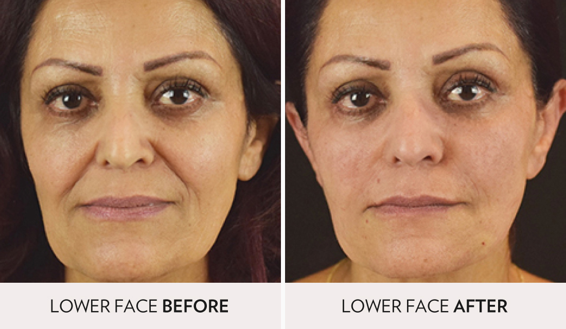 NovaThreads Face Lift - Spa Radiance Medical