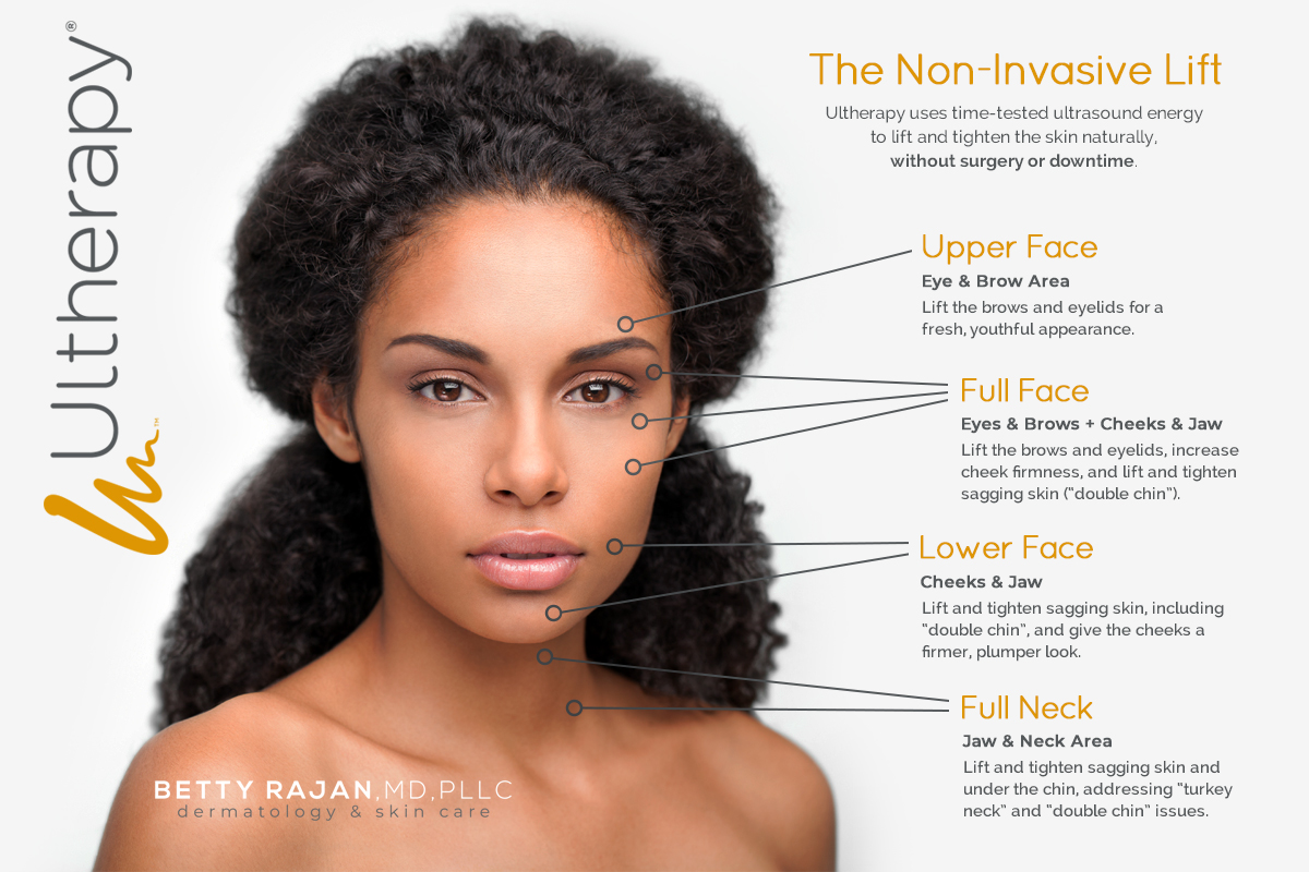 FAQ | Ultherapy | Spa Radiance Medical | San Francisco Med Spa