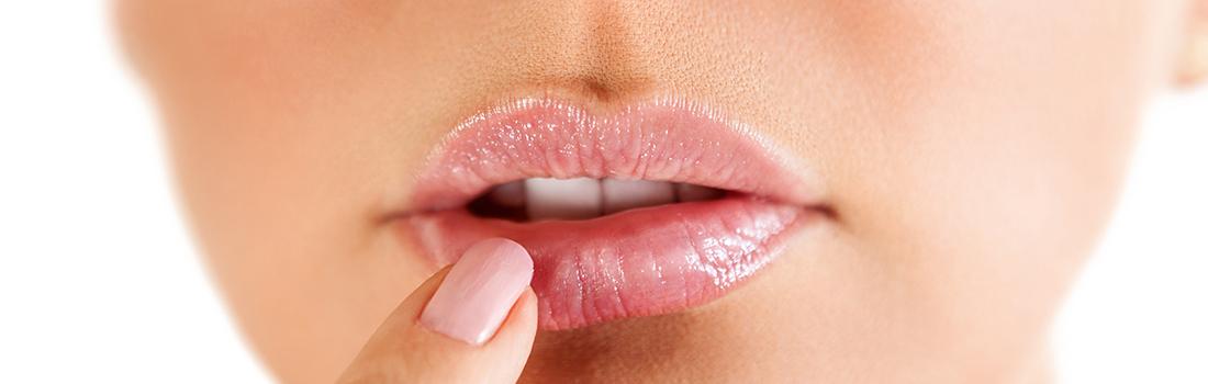 Botox Dysport #LipFlip | Spa Radiance Medical | San Francisco Med Spa